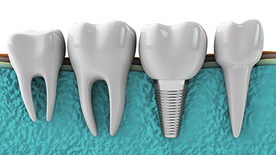 Dental Implants - Fred Rabinowitz, DDS